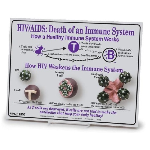 HIV and AIDS: Death of an Immune System Easel Display